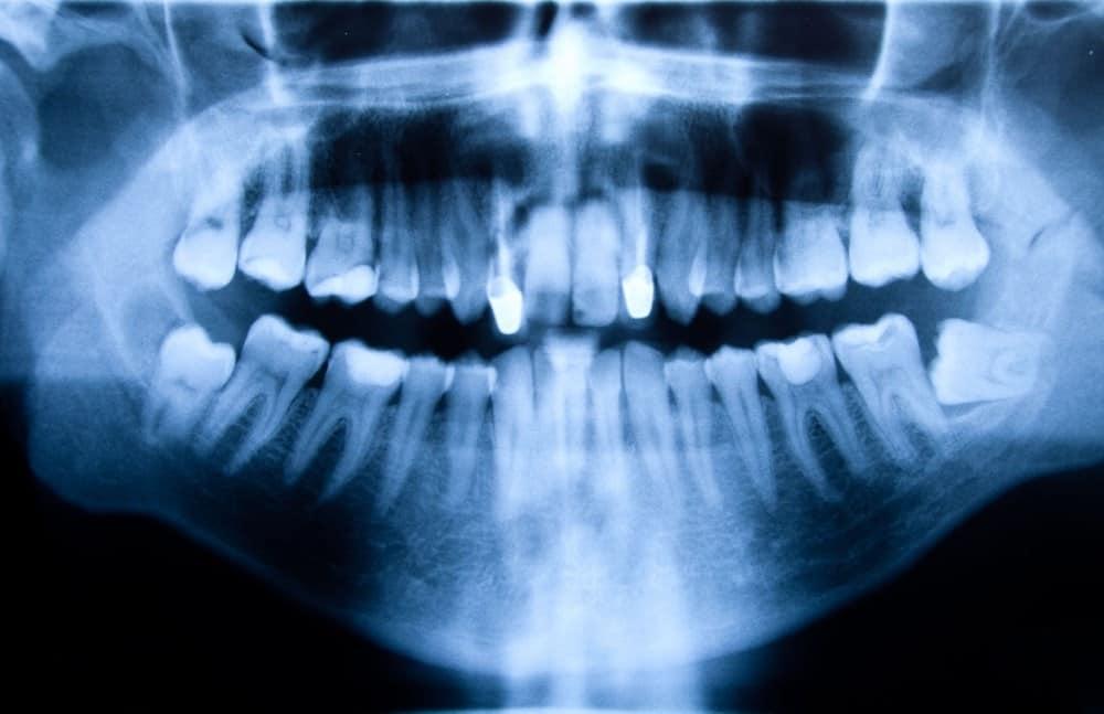Chirurgia stomatologiczna - Ars Dentica