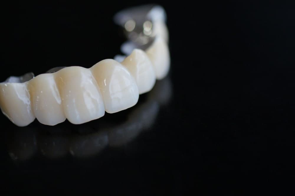 Protetyka - Ars Dentica