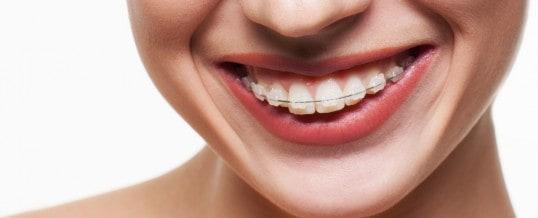Wprowadzamy do naszej oferty leczenie ortodontyczne