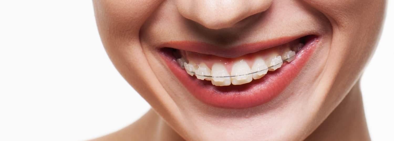 Ortodoncja - Ars Dentica